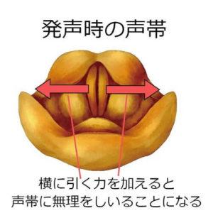 声帯を横方向に引っ張る力をかけているために声がかすれる時の図解